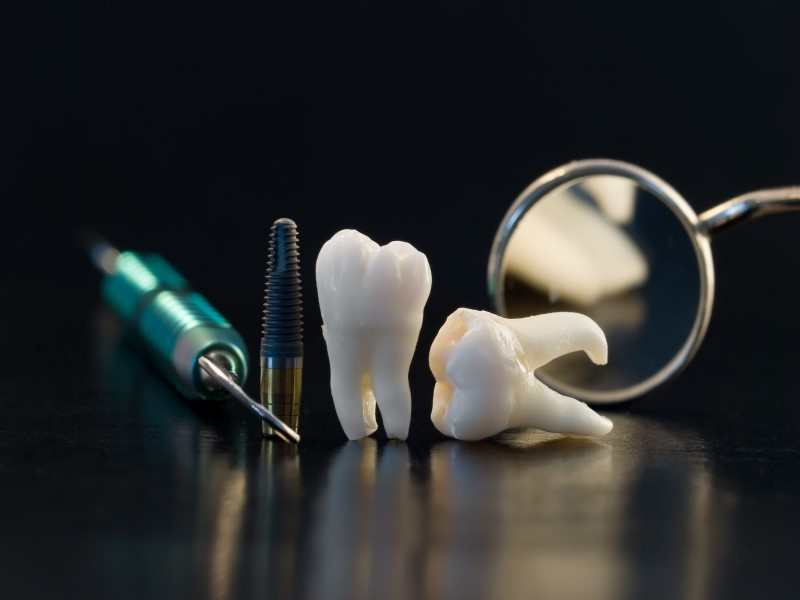 All About Dental Implants Barnoldsick