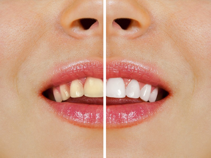 Choosing the Right Teeth Whitening Method to Whiten and Brighten Your Smile