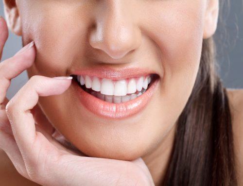 Teeth Whitening Q&A!