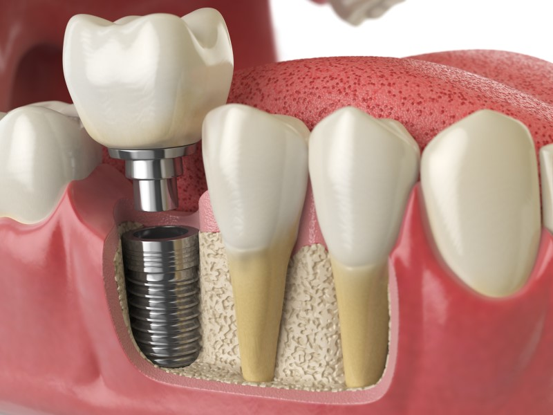 The Benefits of Dental Implants Barnoldsick